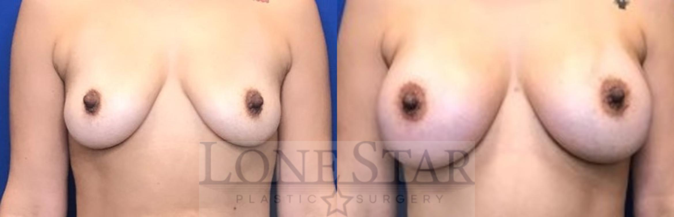 Breast Augmentation Case 34 Before & After View #1 | Frisco, TX | Lone Star Plastic Surgery: Dr. Sean Hill