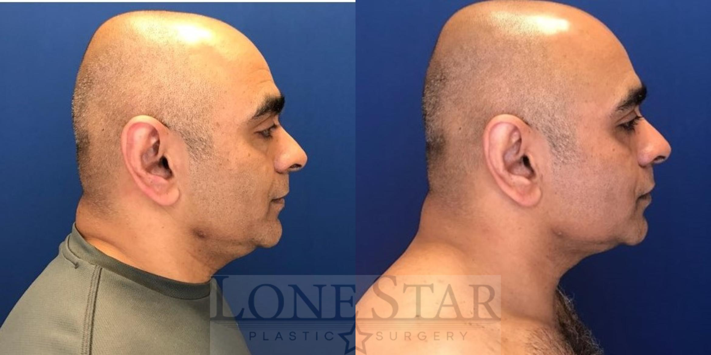 Embrace RF  Case 30 Before & After View #1 | Frisco, TX | Lone Star Plastic Surgery: Dr. Sean Hill