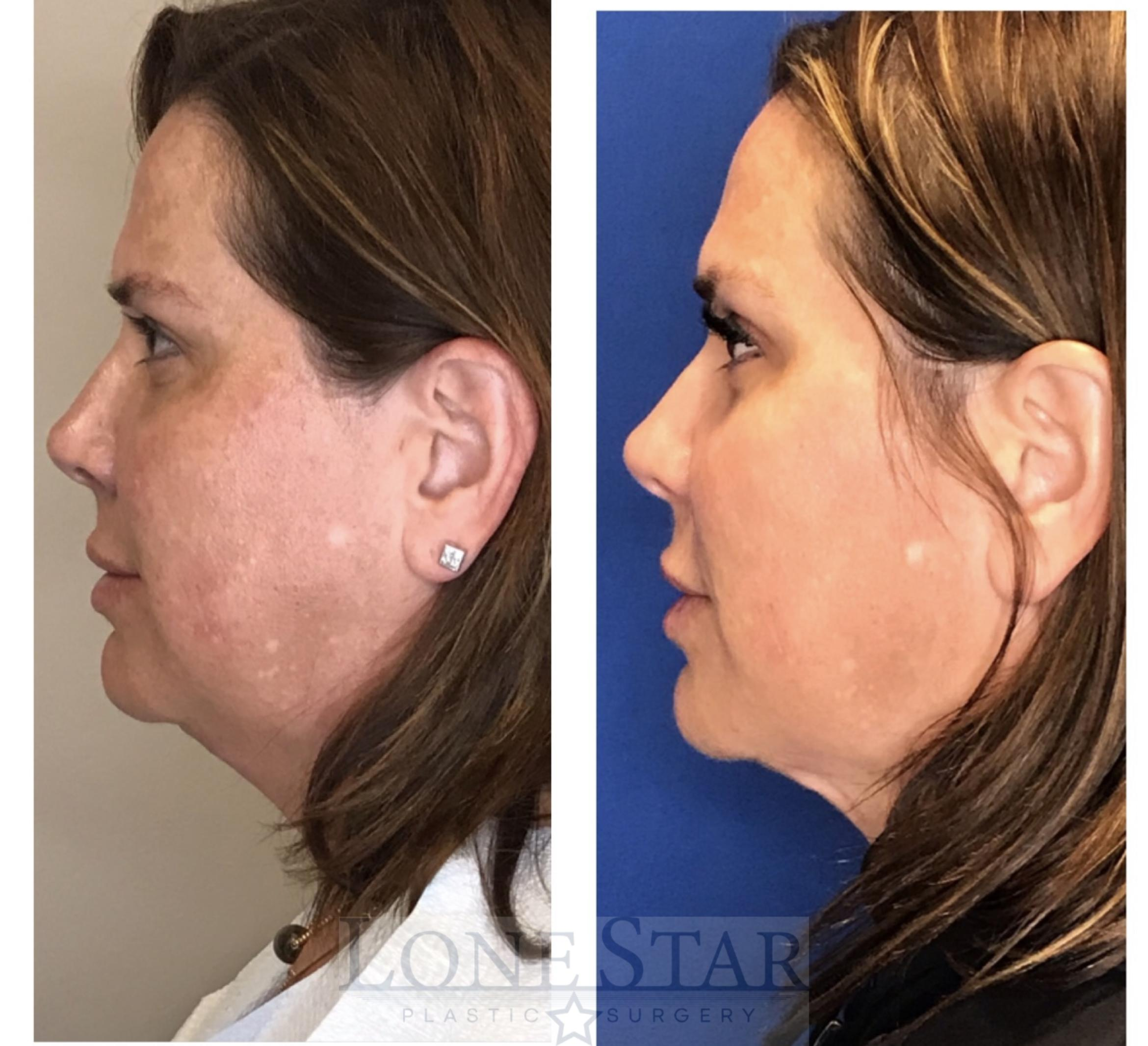 Embrace RF  Case 39 Before & After View #1 | Frisco, TX | Lone Star Plastic Surgery: Dr. Sean Hill
