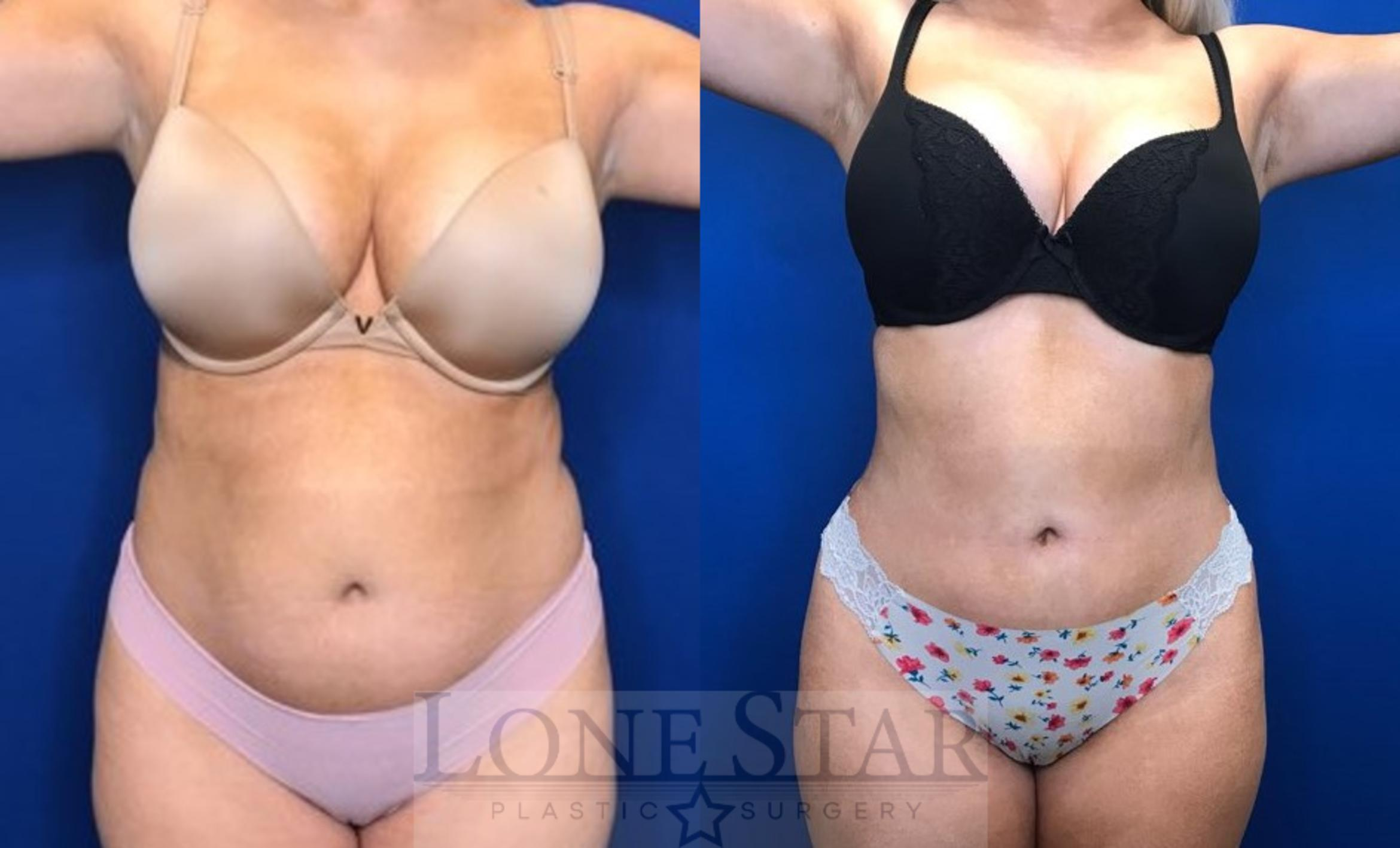 Liposuction Case 31 Before & After View #1 | Frisco, TX | Lone Star Plastic Surgery: Dr. Sean Hill