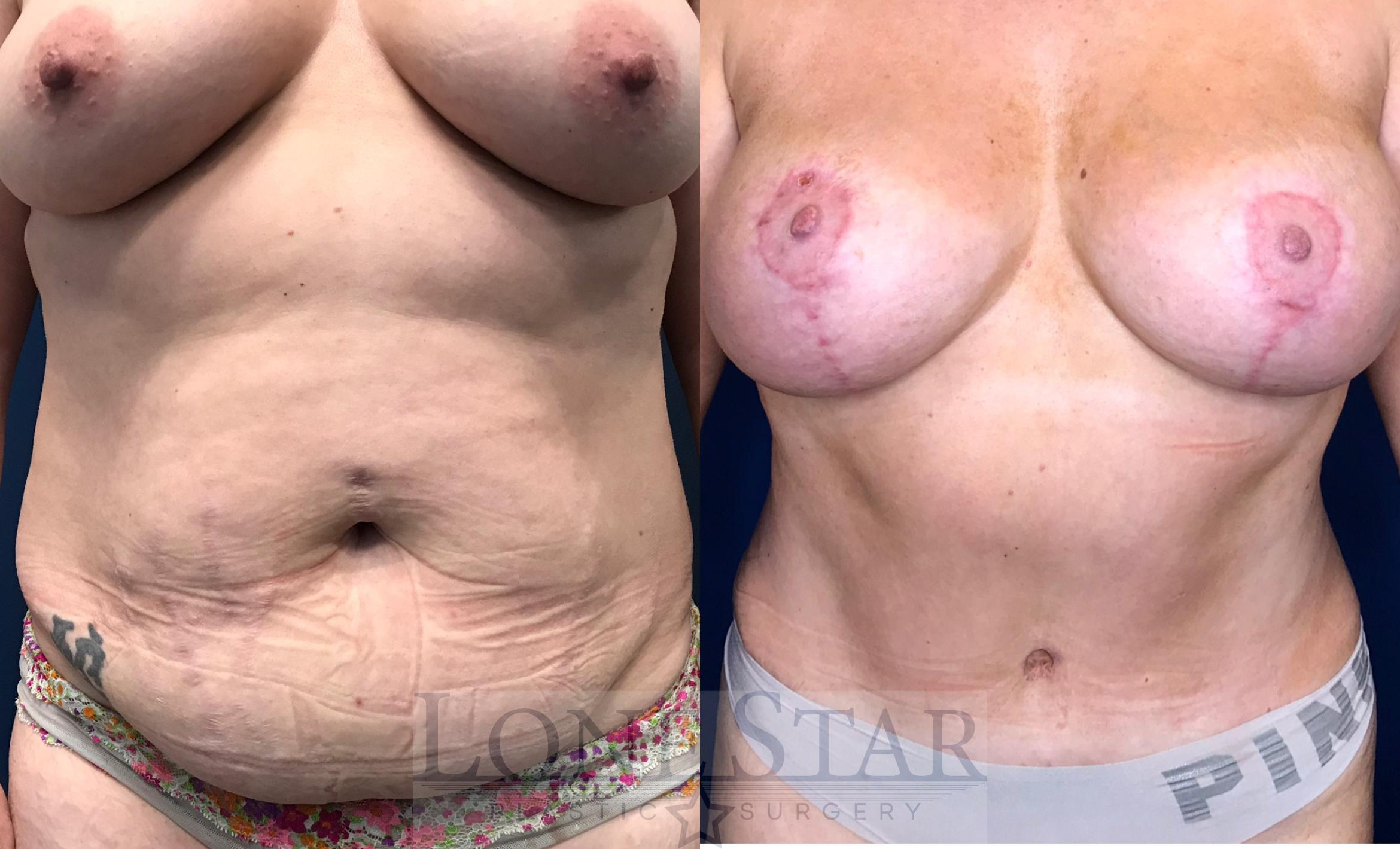Mommy Makeover Case 19 Before & After View #1 | Frisco, TX | Lone Star Plastic Surgery: Dr. Sean Hill