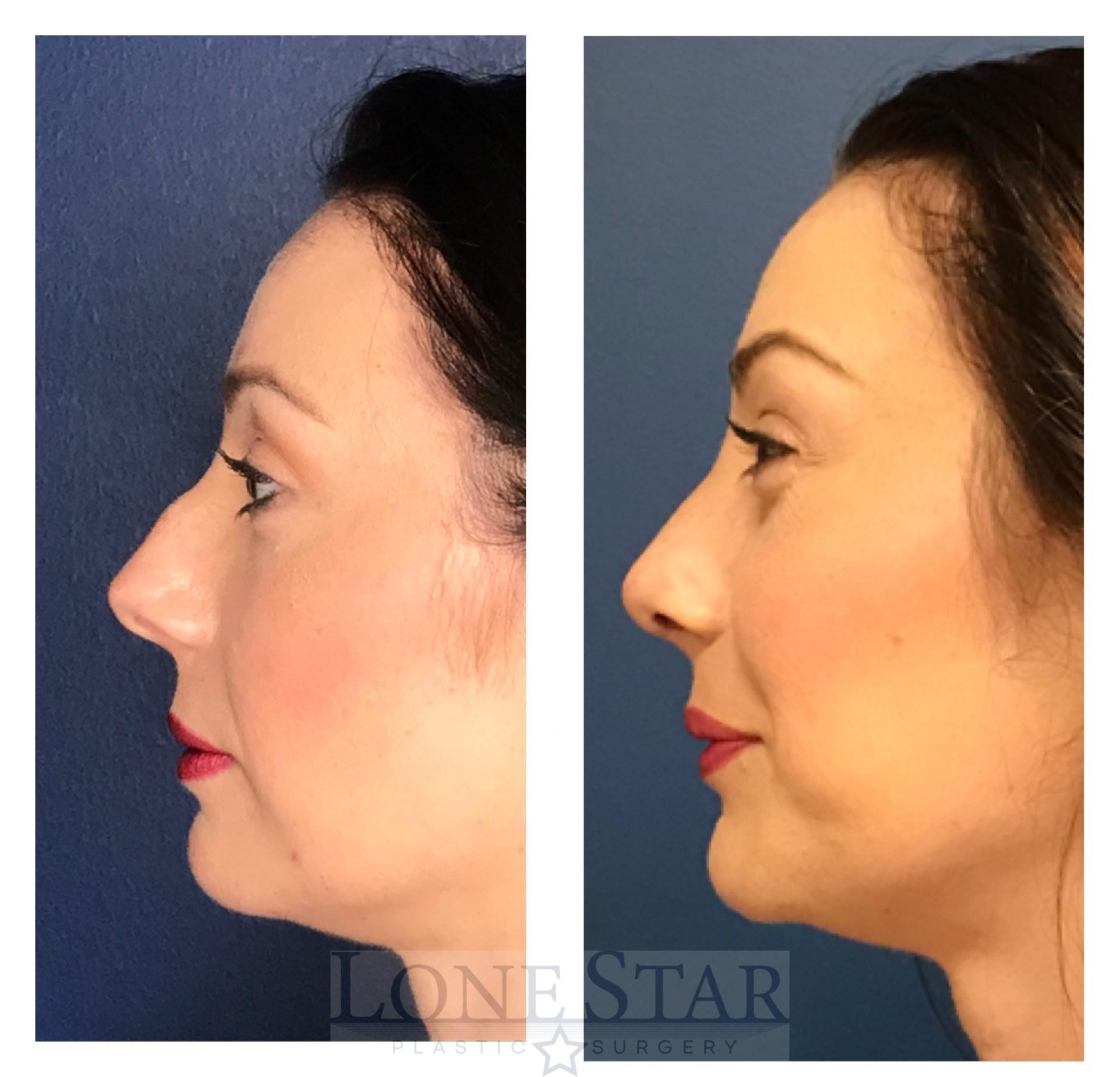 Rhinoplasty Case 9 Before & After View #1 | Frisco, TX | Lone Star Plastic Surgery: Dr. Sean Hill