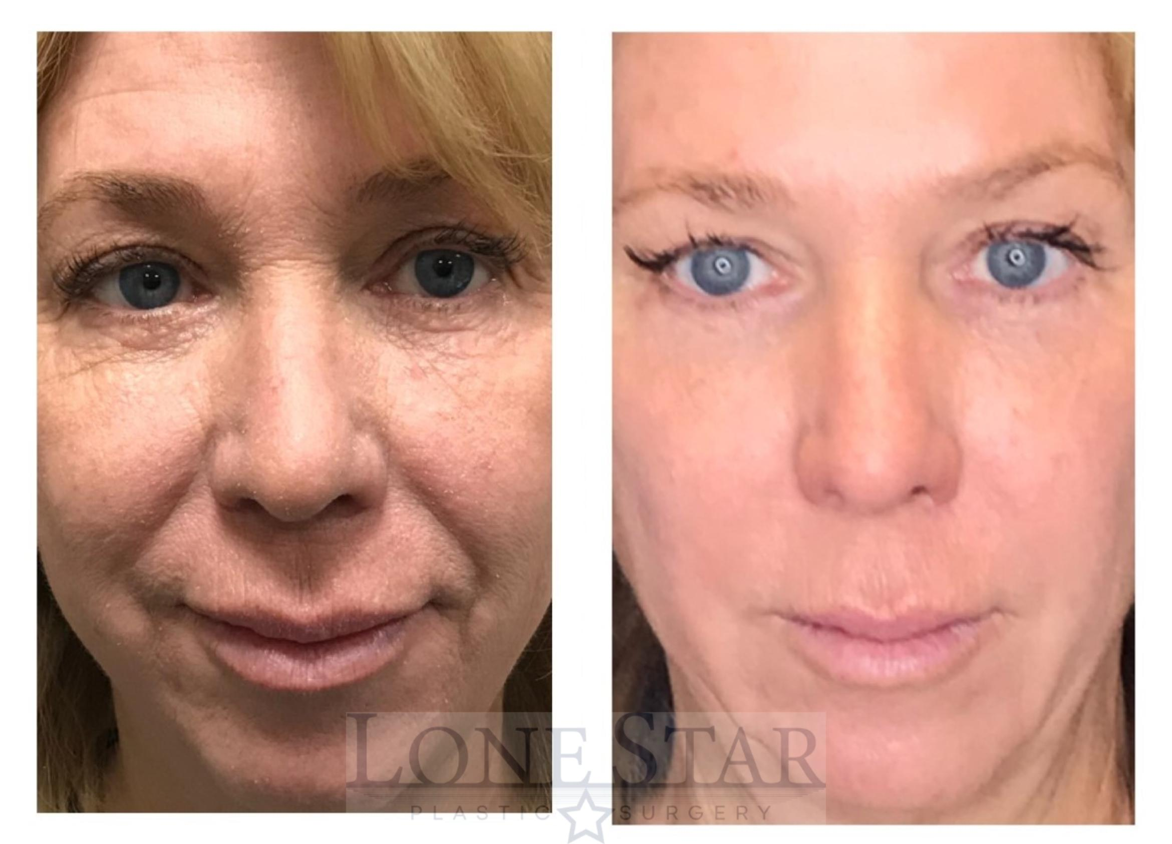 Skin Care / Chemical Peels Case 27 Before & After View #1 | Frisco, TX | Lone Star Plastic Surgery: Dr. Sean Hill